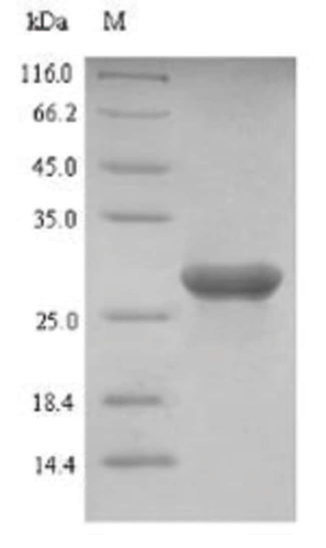 enQuireBio™Recombinant Bovine Galectin-1 / LGALS1 Protein 100μg enQuireBio™Recombinant Bovine Galectin-1 / LGALS1 Protein