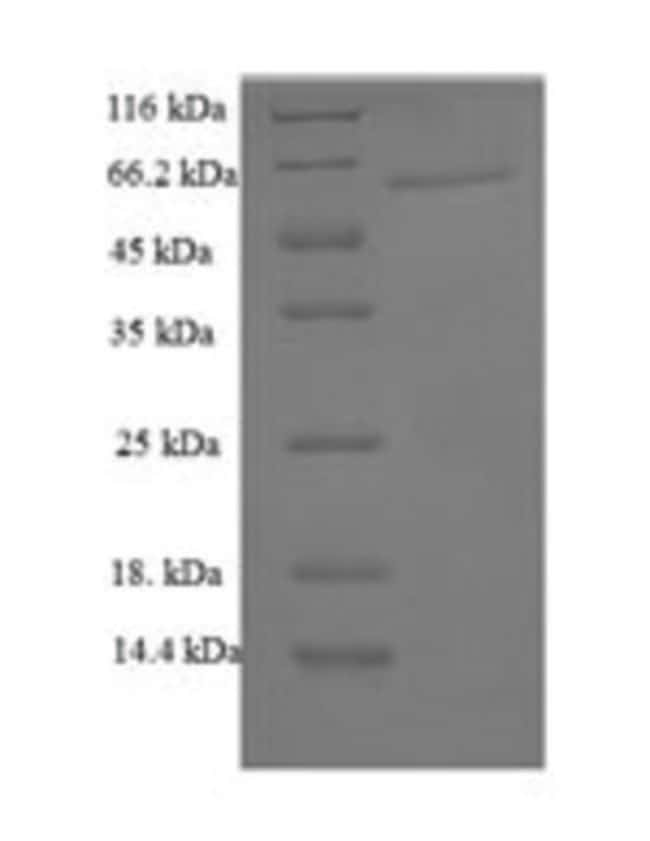 enQuireBio™Recombinant Mouse Galectin-6 Protein 10μg enQuireBio™Recombinant Mouse Galectin-6 Protein