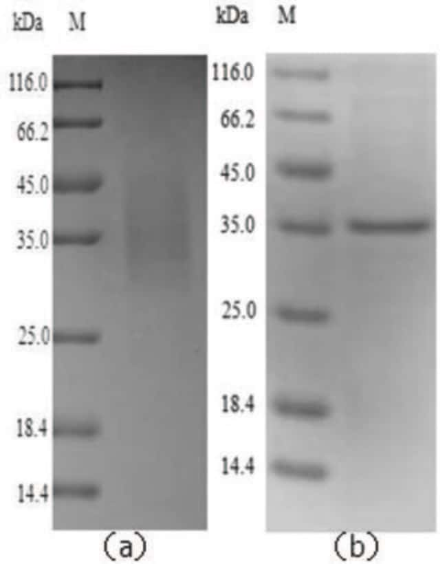 enQuireBio™ Recombinant Mouse Legumain /  LGMN Protein 50μg enQuireBio™ Recombinant Mouse Legumain /  LGMN Protein