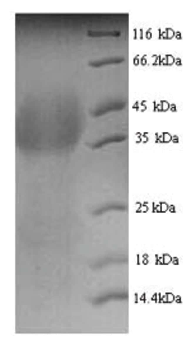 enQuireBio™Recombinant Human Lutropin-choriogonadotropic hormone receptor Protein 100μg enQuireBio™Recombinant Human Lutropin-choriogonadotropic hormone receptor Protein