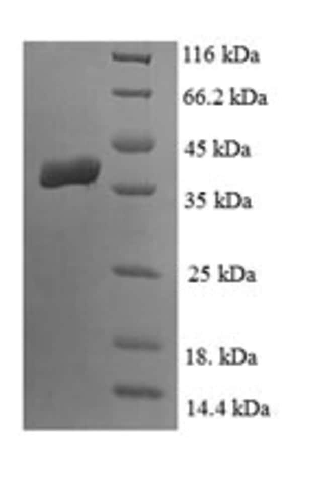 enQuireBio™Recombinant Human Lipoyl synthase, mitochondrial Protein 50μg enQuireBio™Recombinant Human Lipoyl synthase, mitochondrial Protein
