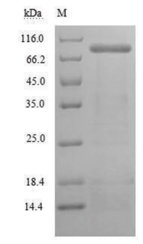 enQuireBio™Recombinant Mouse LOXL2 / Lysyl oxidase homolog 2 Protein 200μg enQuireBio™Recombinant Mouse LOXL2 / Lysyl oxidase homolog 2 Protein