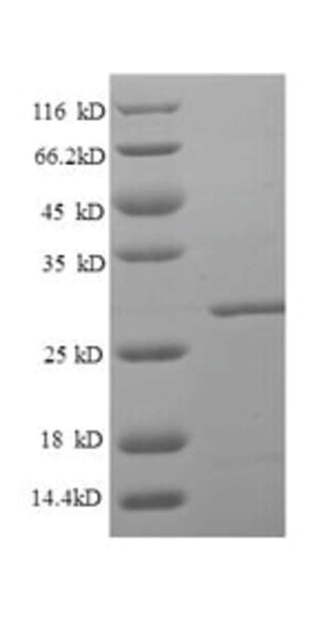 enQuireBio™Recombinant Human LRBA Protein 100μg enQuireBio™Recombinant Human LRBA Protein