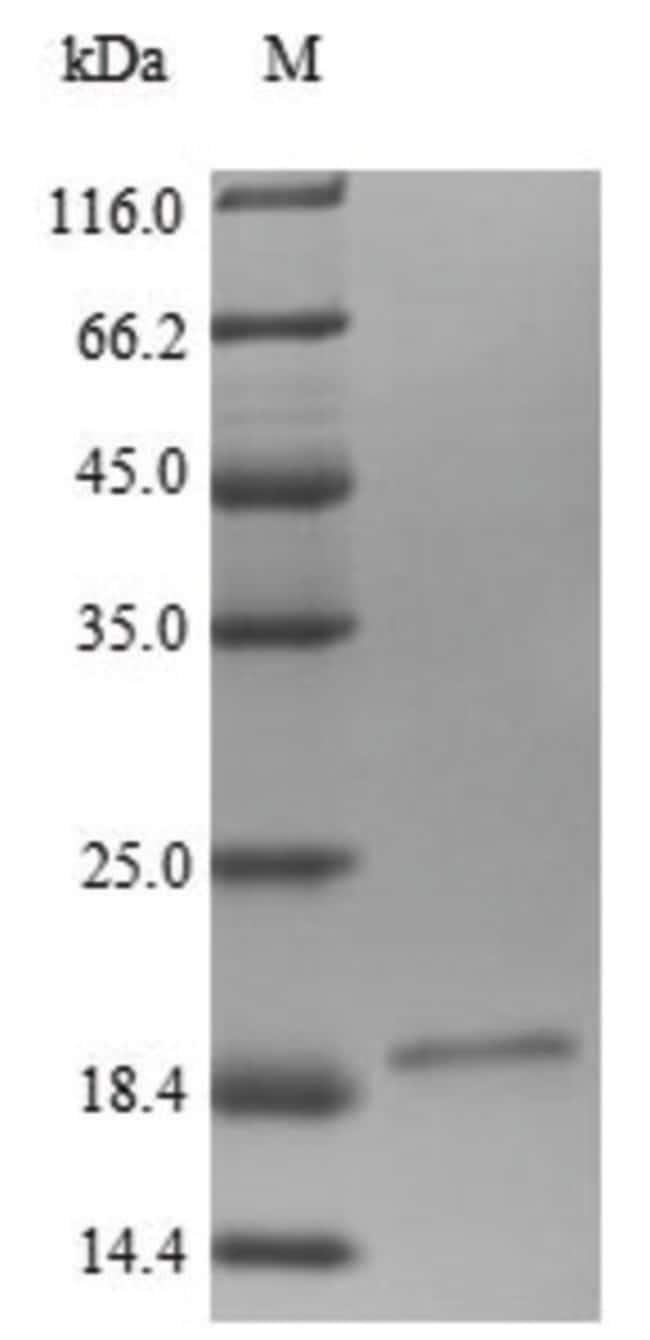 enQuireBio™Recombinant Human LRP4 Protein 50μg enQuireBio™Recombinant Human LRP4 Protein