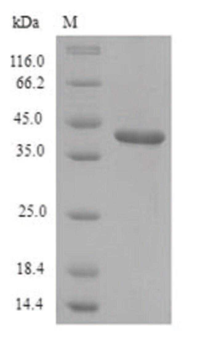 enQuireBio™Recombinant Rat Lumican / LUM Protein 500μg enQuireBio™Recombinant Rat Lumican / LUM Protein