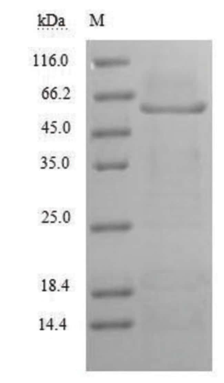 enQuireBio™Recombinant Human MAG / GMA / Siglec-4 Protein 1mg enQuireBio™Recombinant Human MAG / GMA / Siglec-4 Protein
