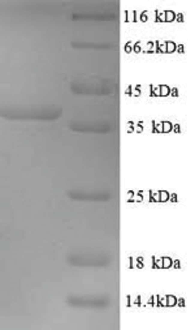 enQuireBio™Recombinant Mouse Microtubule-associated protein 1 10μg enQuireBio™Recombinant Mouse Microtubule-associated protein 1