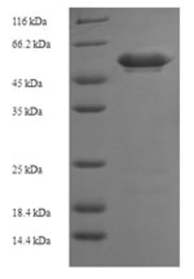 enQuireBio™Recombinant Human MAP2K3 Protein 50μg enQuireBio™Recombinant Human MAP2K3 Protein