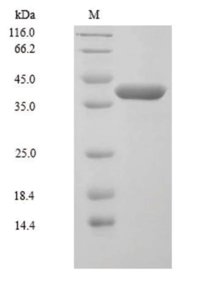 enQuireBio™Recombinant Human MKK6 / MEK6 / MAP2K6 Protein 100μg enQuireBio™Recombinant Human MKK6 / MEK6 / MAP2K6 Protein