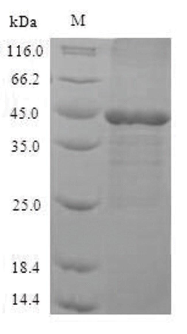enQuireBio™Recombinant Human Mitogen-activated protein kinase 3 Protein 1mg enQuireBio™Recombinant Human Mitogen-activated protein kinase 3 Protein