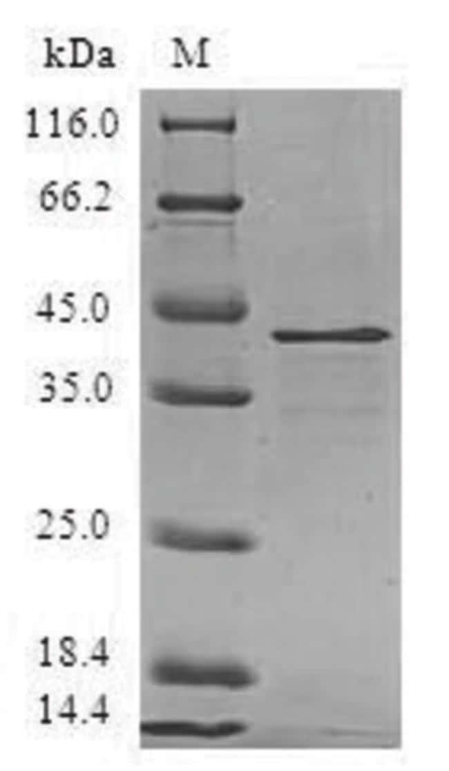 enQuireBio™Recombinant Human Ragulator complex protein LAMTOR3 Protein 100μg enQuireBio™Recombinant Human Ragulator complex protein LAMTOR3 Protein