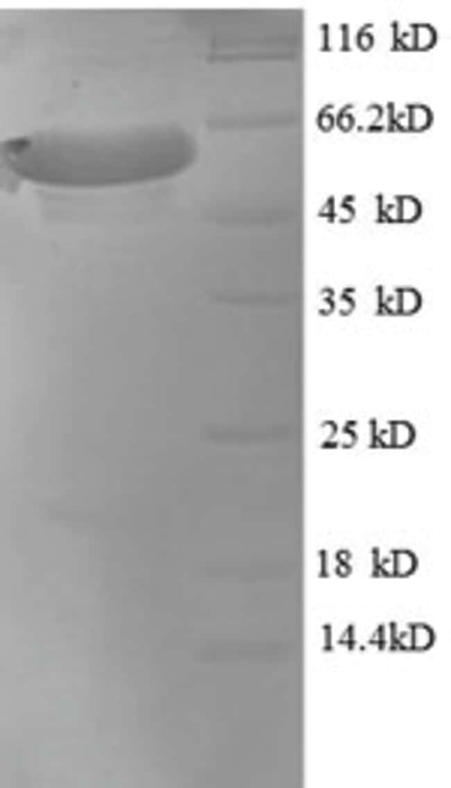 enQuireBio™Recombinant Macaque MAPT / Tau Protein 500μg enQuireBio™Recombinant Macaque MAPT / Tau Protein