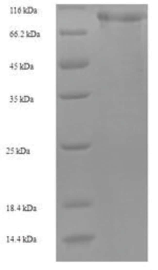 enQuireBio™Recombinant Human Mannan-binding lectin serine protease 1 Protein 100μg enQuireBio™Recombinant Human Mannan-binding lectin serine protease 1 Protein