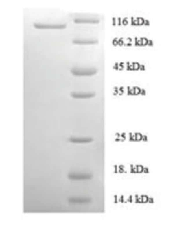 enQuireBio™ Recombinant Human DNA replication licensing factor MCM2 Protein 1mg enQuireBio™ Recombinant Human DNA replication licensing factor MCM2 Protein