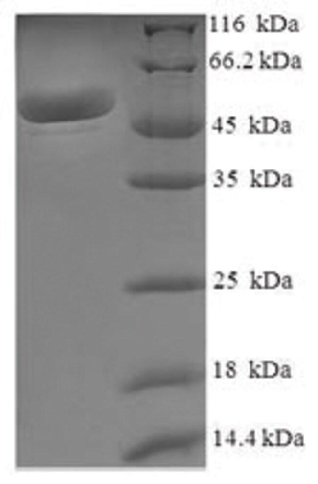 enQuireBio™Recombinant Human Malate dehydrogenase, mitochondrial Protein 100μg enQuireBio™Recombinant Human Malate dehydrogenase, mitochondrial Protein