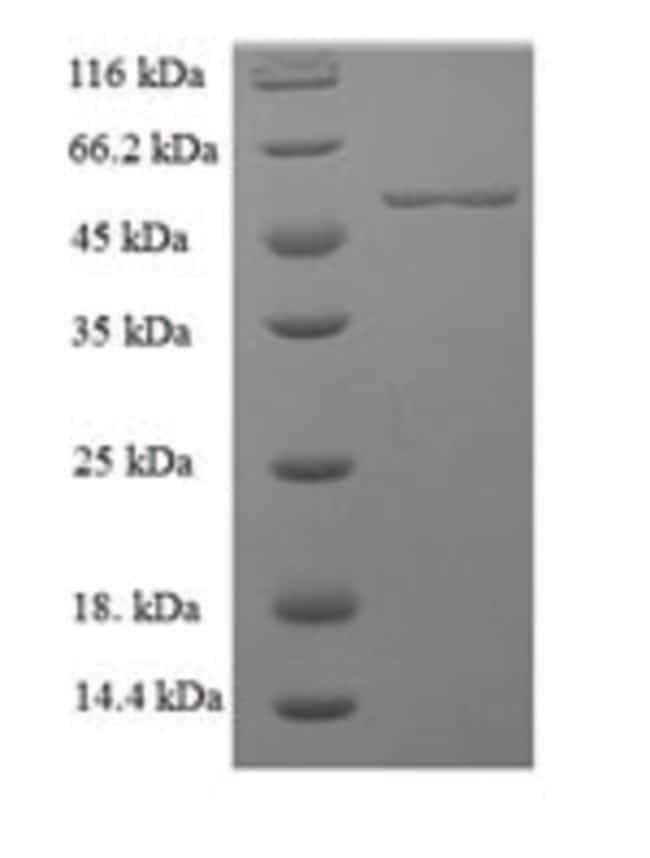 enQuireBio™Recombinant Human MFG-E8 / lactadherin Protein 200μg enQuireBio™Recombinant Human MFG-E8 / lactadherin Protein