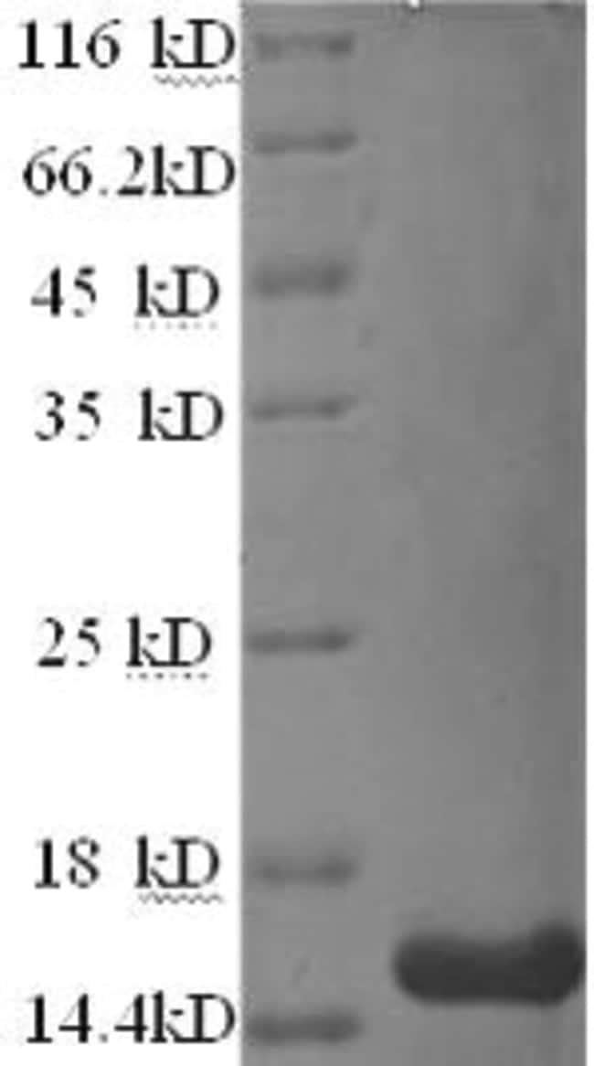 enQuireBio™Recombinant Human Matrix Gla Protein 100μg enQuireBio™Recombinant Human Matrix Gla Protein