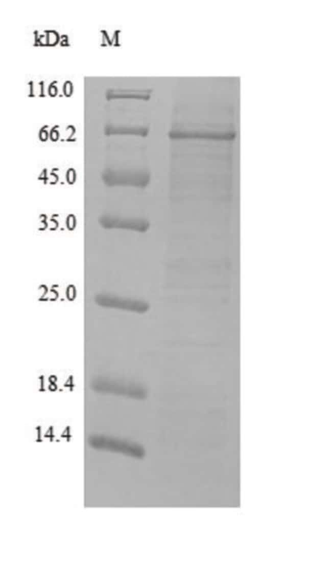 enQuireBio™ Recombinant Rat MMP-2 / CLG4A Protein 500μg enQuireBio™ Recombinant Rat MMP-2 / CLG4A Protein