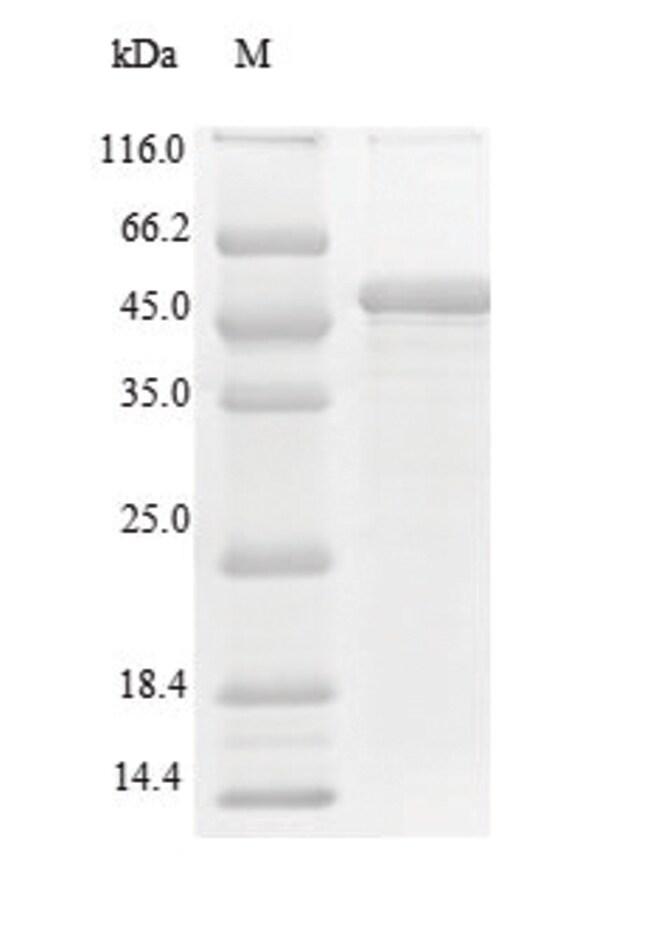 enQuireBio™Recombinant Human c-MPL / CD110 / TPOR Protein 100μg enQuireBio™Recombinant Human c-MPL / CD110 / TPOR Protein