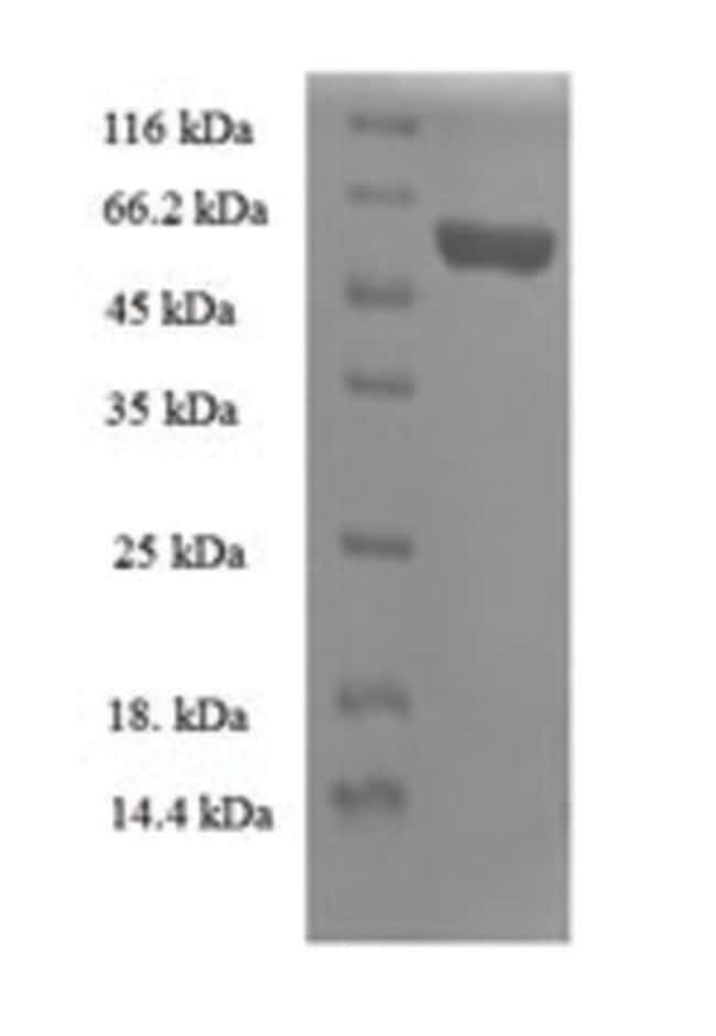 enQuireBio™Recombinant Human 39S ribosomal protein L19, mitochondrial Protein 1mg enQuireBio™Recombinant Human 39S ribosomal protein L19, mitochondrial Protein