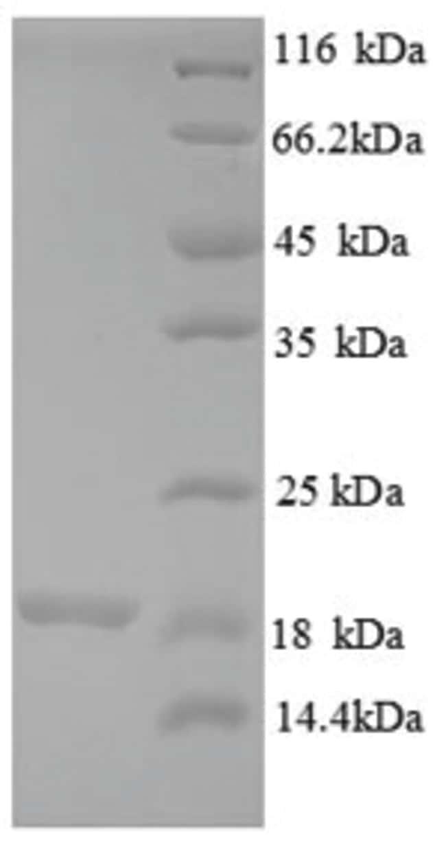 enQuireBio™Recombinant Human 39S ribosomal protein L54, mitochondrial Protein 500μg enQuireBio™Recombinant Human 39S ribosomal protein L54, mitochondrial Protein