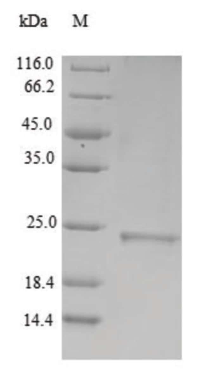 enQuireBio™Recombinant Human Metallothionein-3 Protein 50μg enQuireBio™Recombinant Human Metallothionein-3 Protein