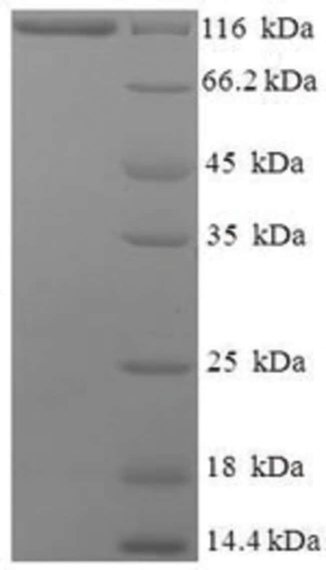 enQuireBio™Recombinant Human Major Vault Protein 100μg enQuireBio™Recombinant Human Major Vault Protein