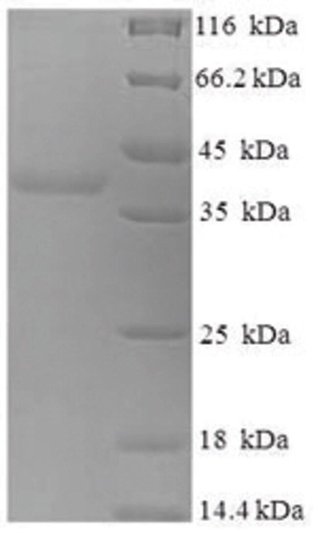enQuireBio™Recombinant Human Myelin expression factor 2 Protein 1mg enQuireBio™Recombinant Human Myelin expression factor 2 Protein