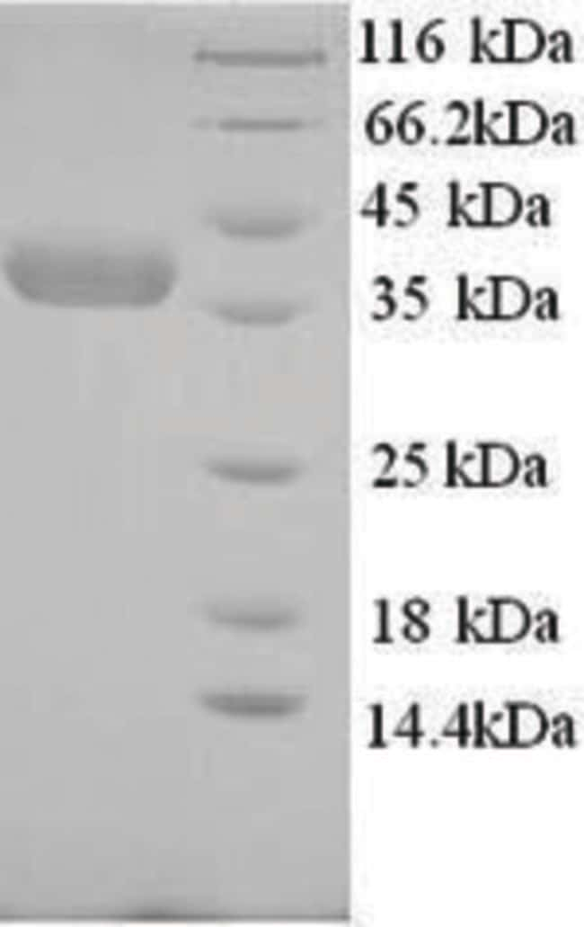 enQuireBio™Recombinant Human Nicotinate phosphoribosyltransferase Protein 100μg enQuireBio™Recombinant Human Nicotinate phosphoribosyltransferase Protein