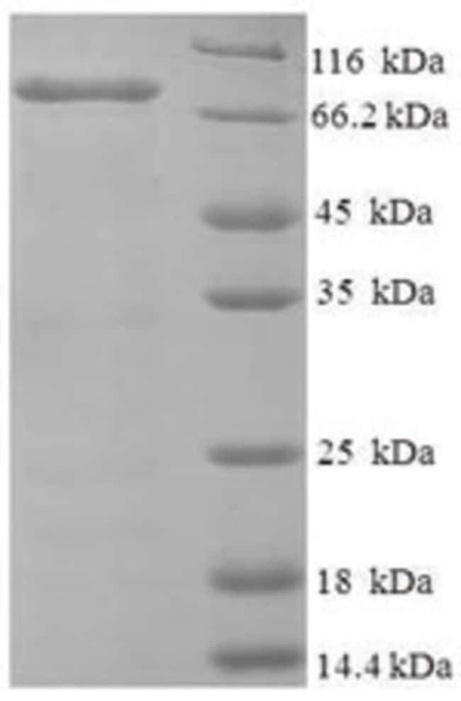 enQuireBio™ Recombinant Human NDST1 Protein 1mg enQuireBio™ Recombinant Human NDST1 Protein