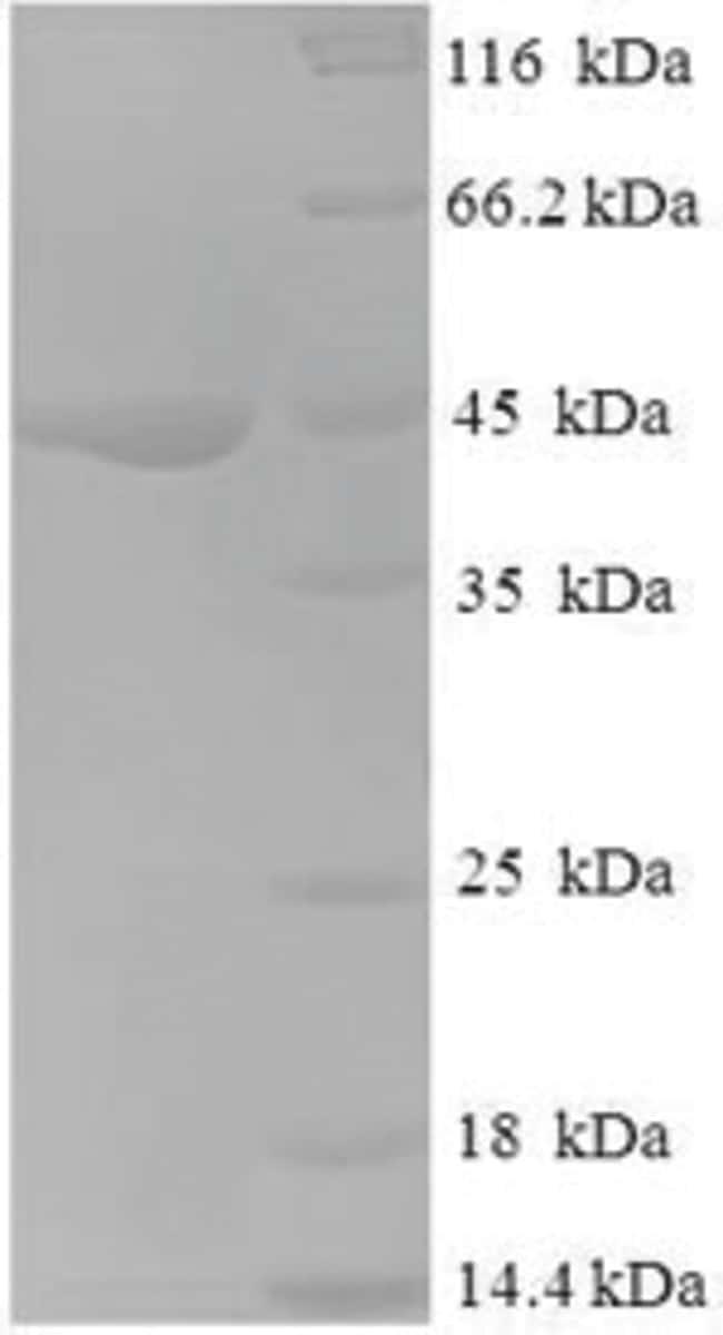 enQuireBio™Recombinant Human NDUFA6 Protein 100μg enQuireBio™Recombinant Human NDUFA6 Protein