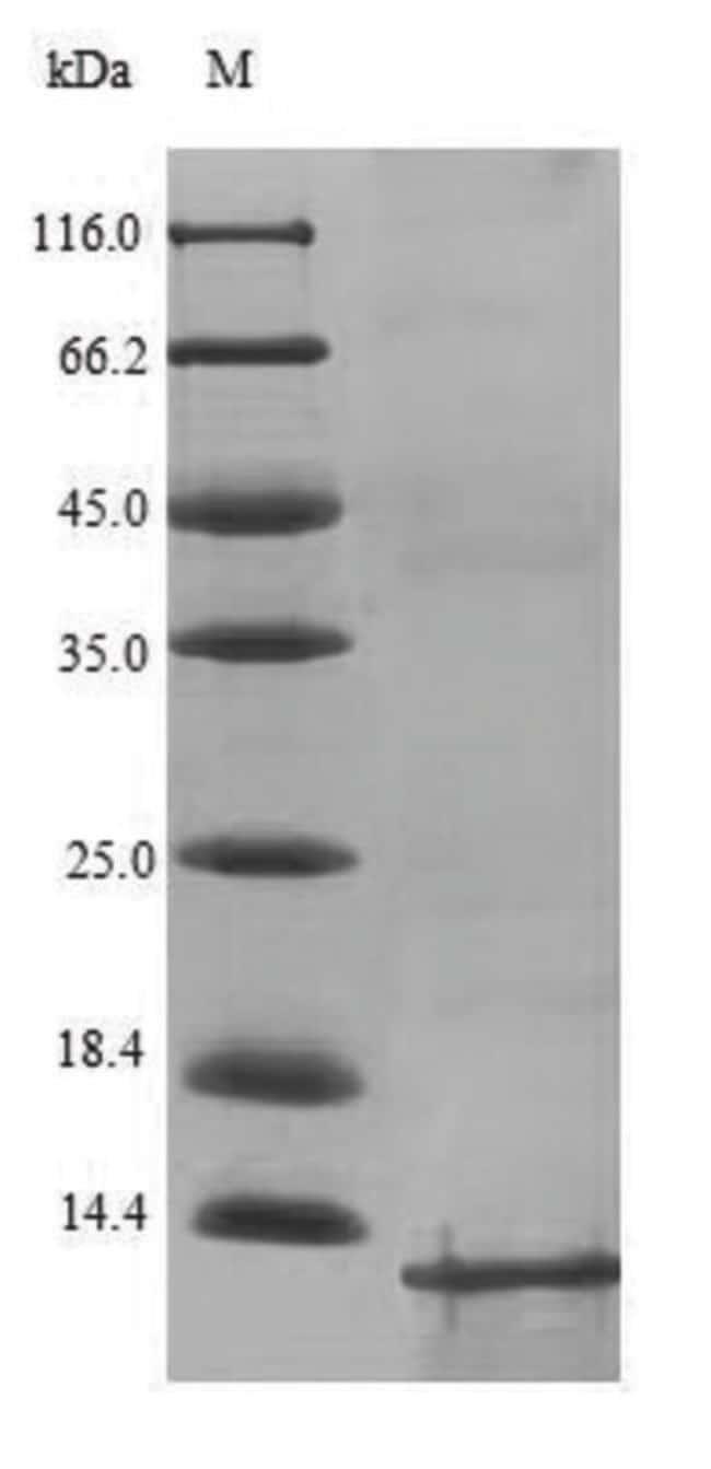 enQuireBio™Recombinant S. aureus Prostatic Acid Phosphatase / ACPP Protein 100μg enQuireBio™Recombinant S. aureus Prostatic Acid Phosphatase / ACPP Protein