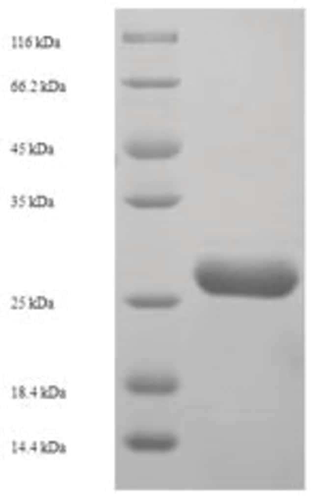 enQuireBio™Recombinant Human NDUFB5 Protein 1mg enQuireBio™Recombinant Human NDUFB5 Protein