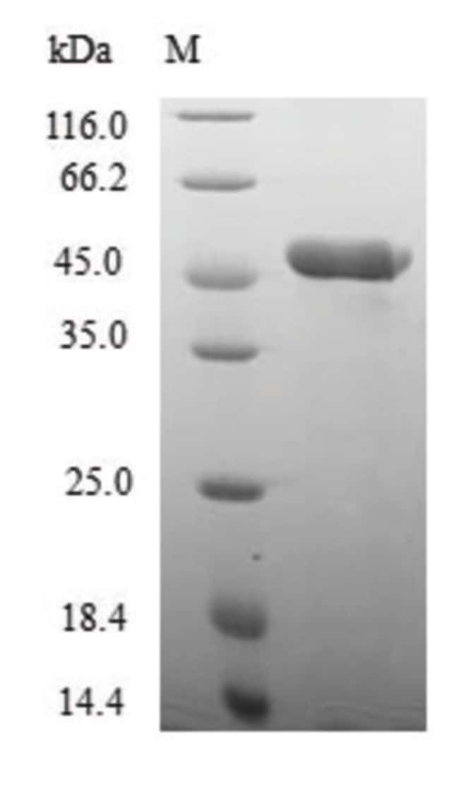 enQuireBio™ Recombinant Human Nuclear transcription factor Y subunit beta Protein 100μg enQuireBio™ Recombinant Human Nuclear transcription factor Y subunit beta Protein