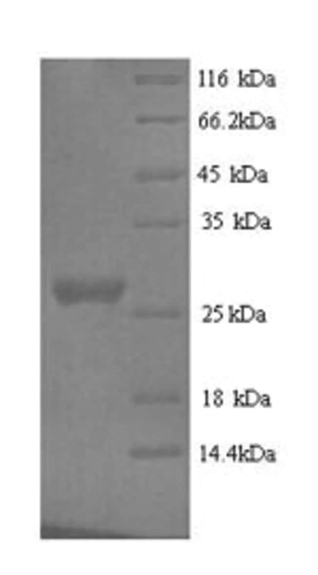 enQuireBio™Recombinant Mouse Nidogen-1 Protein 1mg enQuireBio™Recombinant Mouse Nidogen-1 Protein