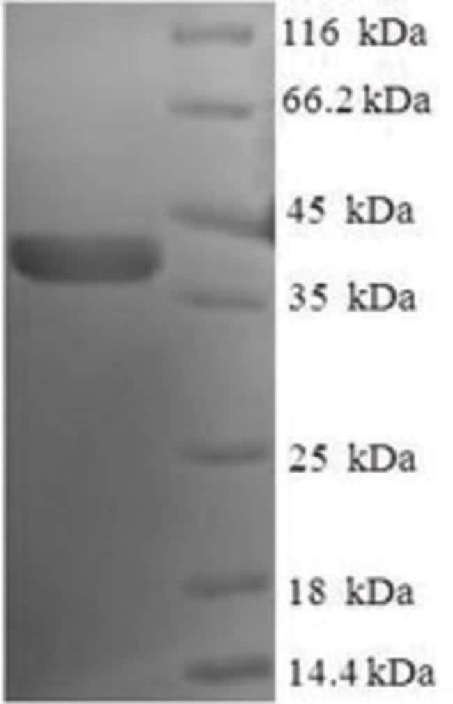 enQuireBio™Recombinant Human Nucleolar protein 1 200μg enQuireBio™Recombinant Human Nucleolar protein 1
