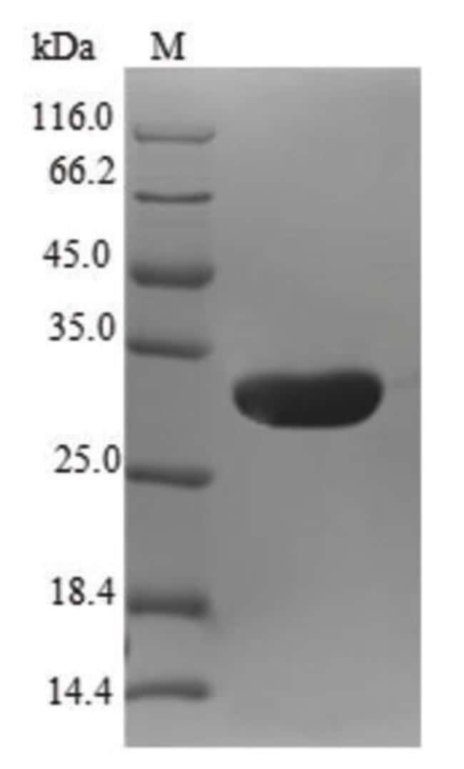 enQuireBio™Recombinant Human Natriuretic peptides B Protein 10μg enQuireBio™Recombinant Human Natriuretic peptides B Protein
