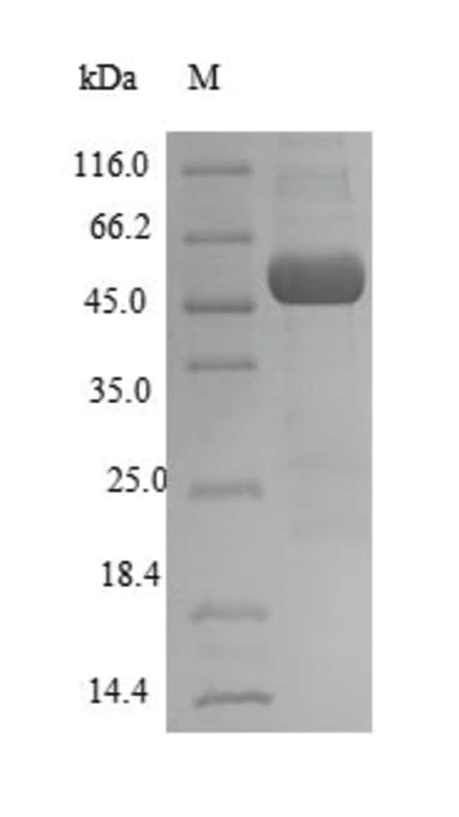 enQuireBio™Recombinant Human Atrial natriuretic peptide receptor 1 Protein 50μg enQuireBio™Recombinant Human Atrial natriuretic peptide receptor 1 Protein