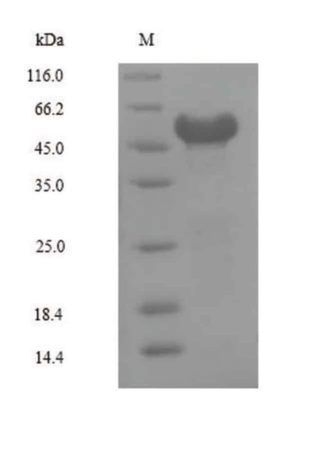 enQuireBio™Recombinant Human NR2F6 Protein 10μg enQuireBio™Recombinant Human NR2F6 Protein