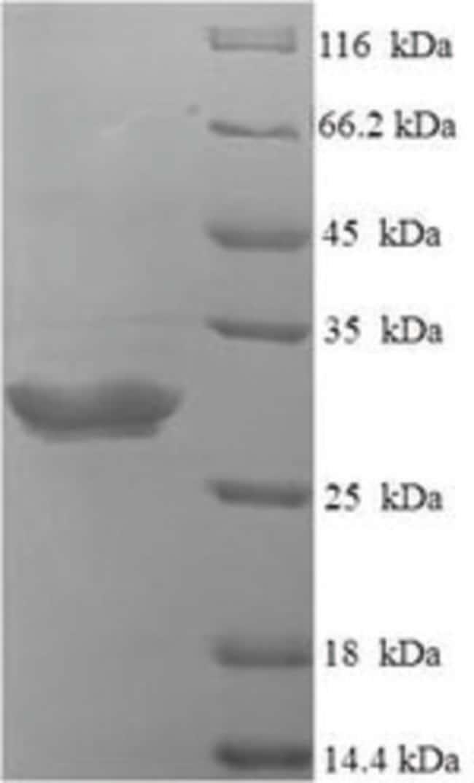 enQuireBio™Recombinant Human Neurotensin Protein 100μg enQuireBio™Recombinant Human Neurotensin Protein