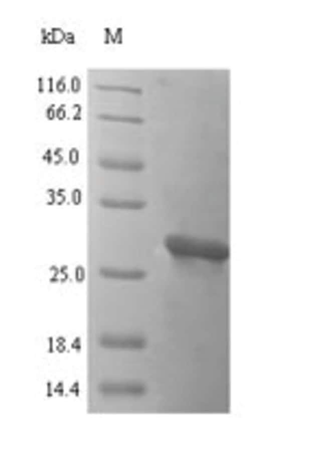 enQuireBio™Recombinant Mouse Oncomodulin Protein 1mg enQuireBio™Recombinant Mouse Oncomodulin Protein