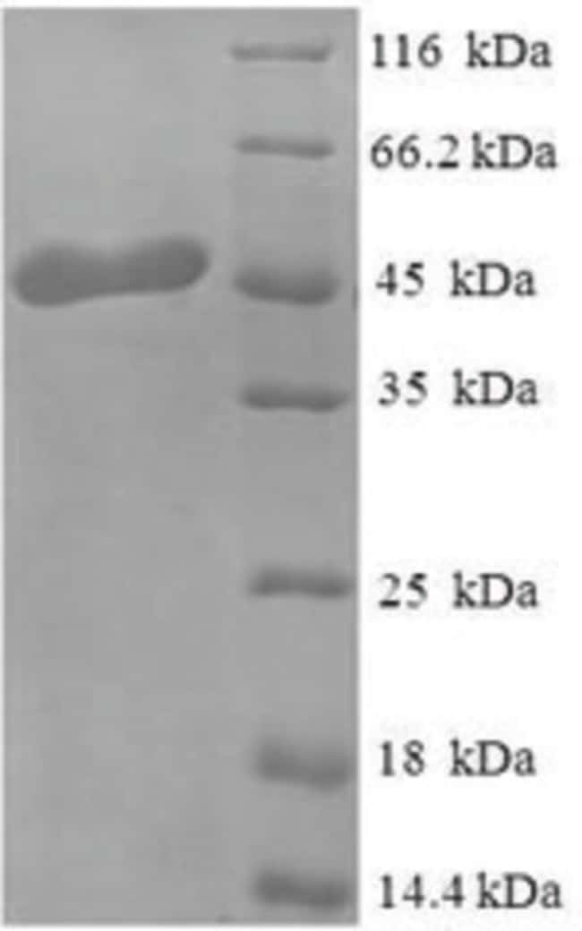 enQuireBio™Recombinant Human OGN / osteoglycin Protein 100μg enQuireBio™Recombinant Human OGN / osteoglycin Protein