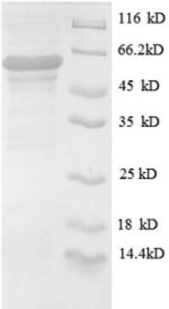 enQuireBio™ Recombinant Human OGT1 Protein 200μg enQuireBio™ Recombinant Human OGT1 Protein