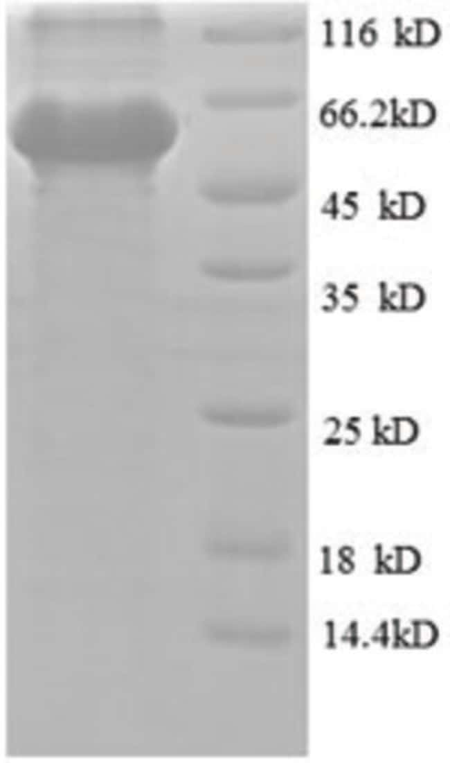 enQuireBio™ Recombinant Human Obg-like ATPase 1 Protein 1mg enQuireBio™ Recombinant Human Obg-like ATPase 1 Protein
