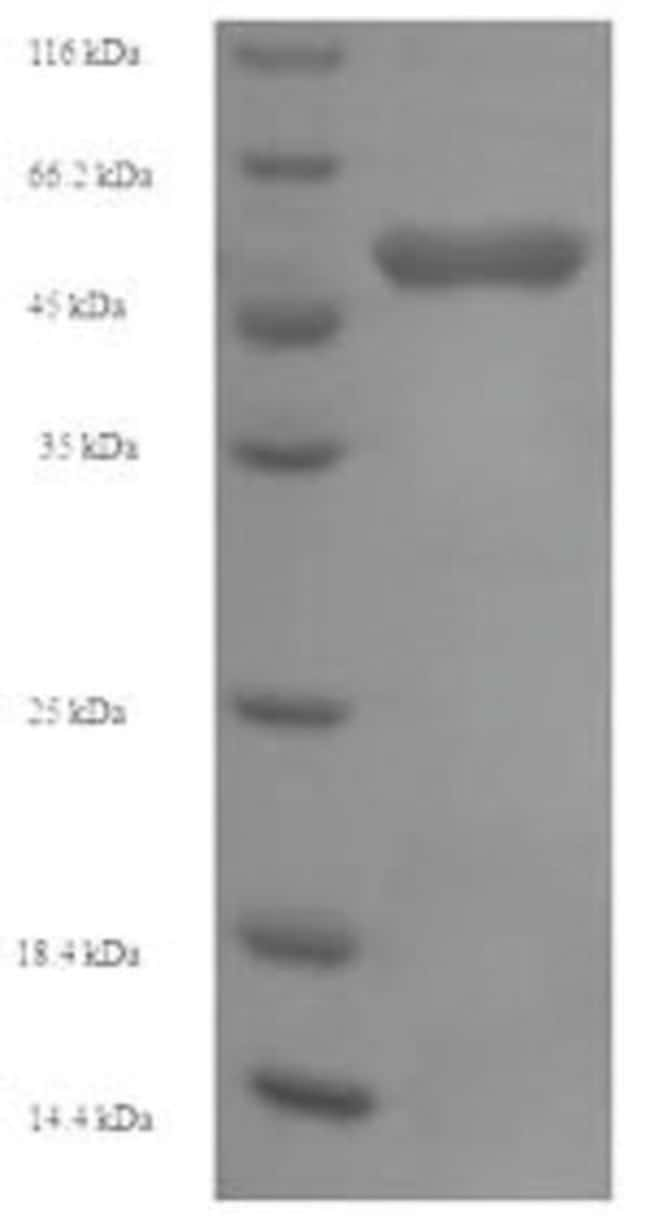 enQuireBio™ Recombinant Human OXCT1 Protein 100μg enQuireBio™ Recombinant Human OXCT1 Protein