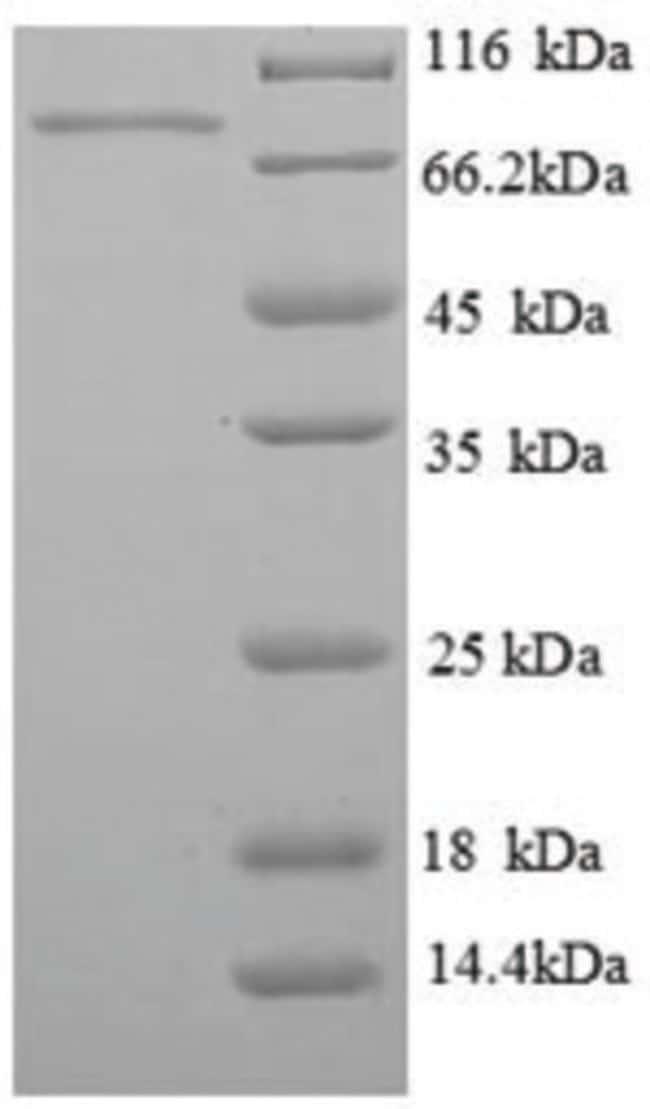 enQuireBio™Recombinant Human PCK1 Protein 100μg enQuireBio™Recombinant Human PCK1 Protein