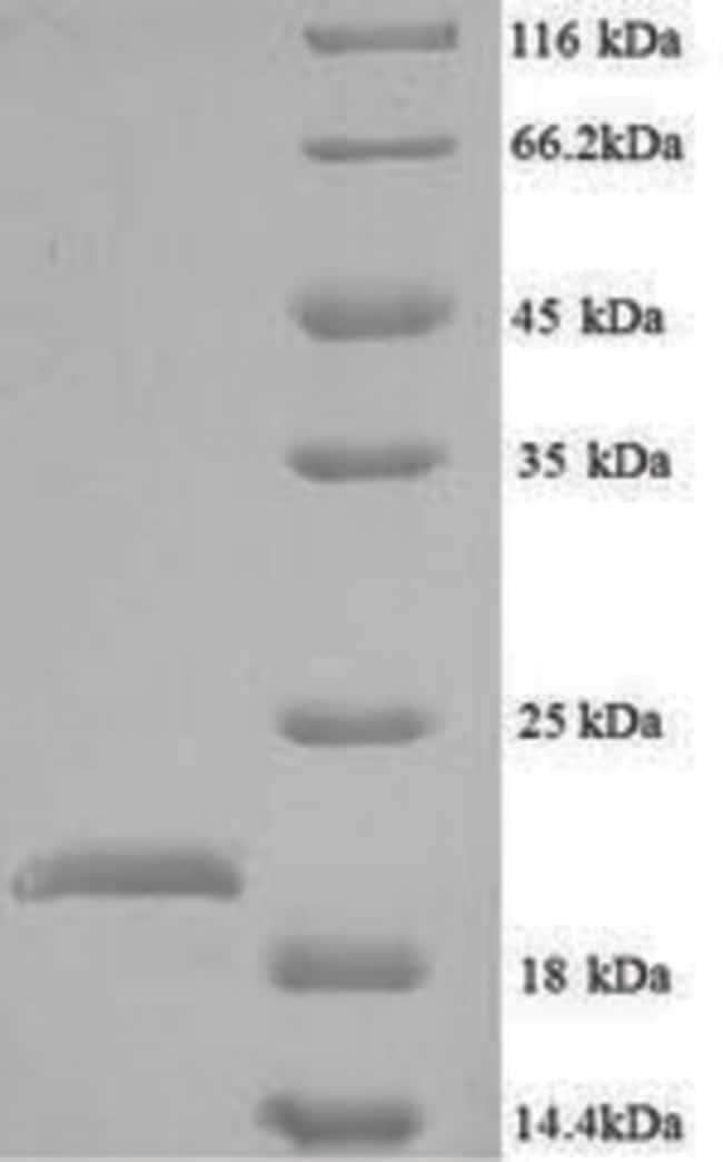 enQuireBio™Recombinant E. coli Peptide deformylase Protein 1mg enQuireBio™Recombinant E. coli Peptide deformylase Protein