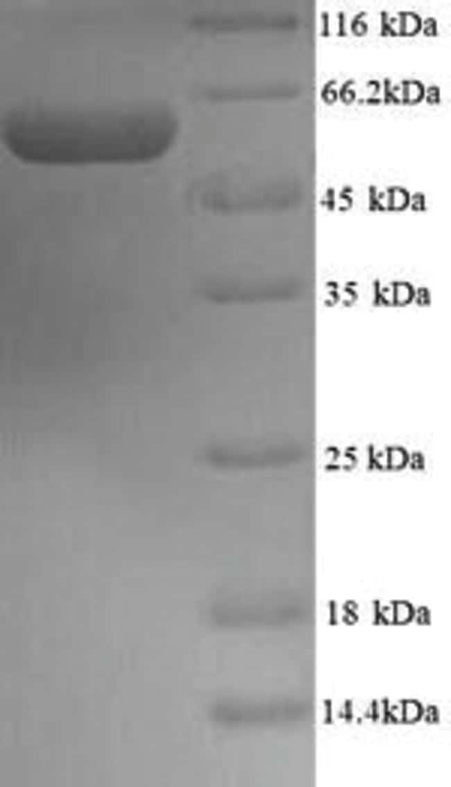 enQuireBio™Recombinant Mouse Protein disulfide-isomerase A2 Protein 500μg enQuireBio™Recombinant Mouse Protein disulfide-isomerase A2 Protein