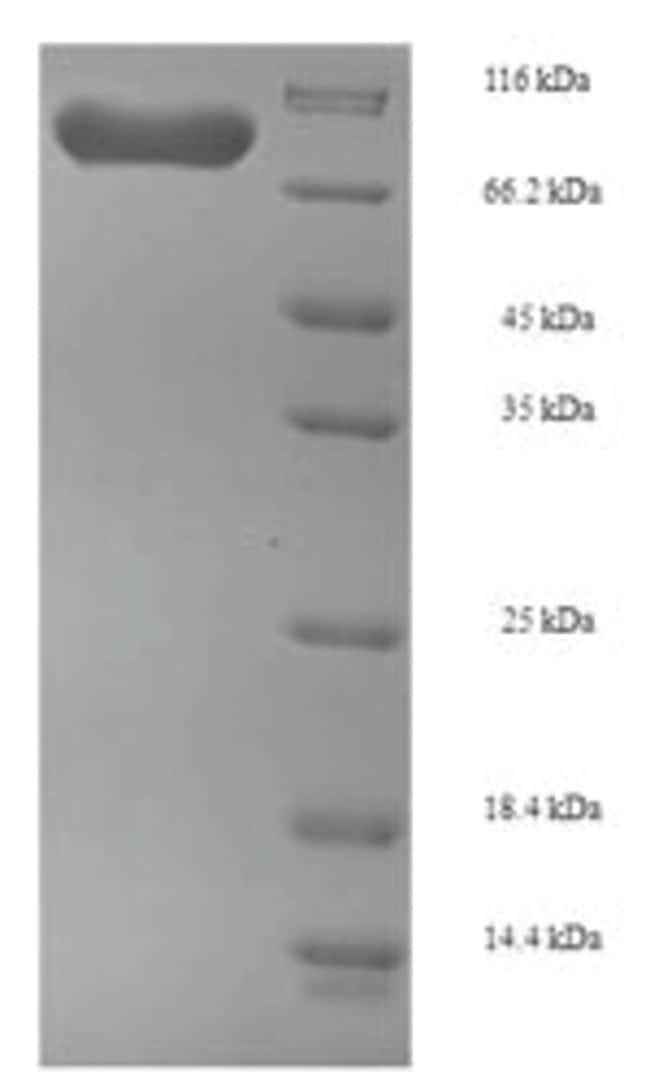 enQuireBio™Recombinant Human Phosphoglucomutase-1 Protein 100μg enQuireBio™Recombinant Human Phosphoglucomutase-1 Protein