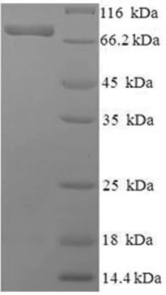 enQuireBio™Recombinant Human Phosphoacetylglucosamine mutase Protein 100μg enQuireBio™Recombinant Human Phosphoacetylglucosamine mutase Protein